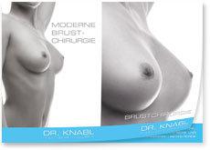 Brustvergrößerung Info Folder Download